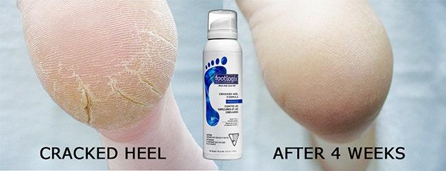 Footlogix Dry Skin