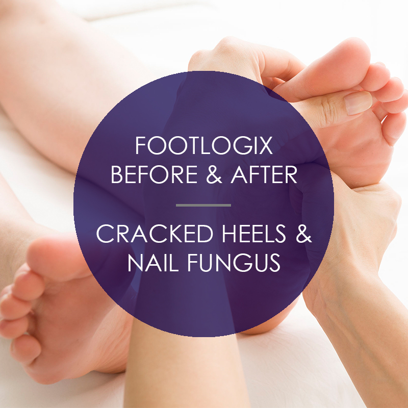 Footlogix: Before & After Cracked Heels & Nail Fungus
