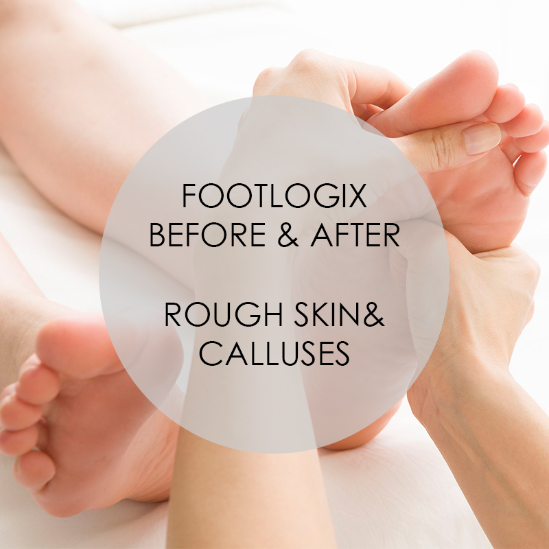 Footlogix: Before & After Rough Skin & Calluses