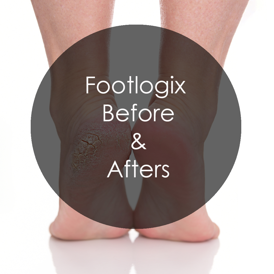 Discover Footlogix Before & Afters